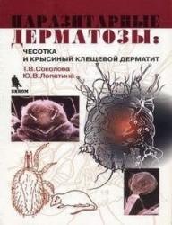 Паразитарные дерматозы. Чесотка и крысиный клещевой дерматит