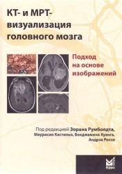 КТ- и МРТ-визуализация головного мозга. Подход на основе изображений