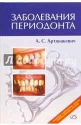 Заболевания периодонта