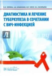 Диагностика и лечение туберкулеза в сочетании с ВИЧ-инфекцией