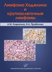 Лимфома Ходжкина и крупноклеточные лимфомы