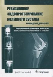 Ревизионное эндопротезирование коленного сустава. Руководство для врачей