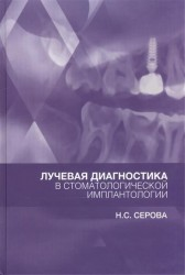Лучевая диагностика в стоматологической имплантологии