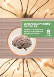 Цереброваскулярная патология - новые возможности низкодозированной нейропротекции. Сборник научных статей