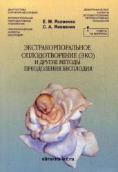 Экстракорпоральное оплодотворение (ЭКО) и другие методы преодоления бесплодия