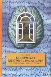 Клиническая электроэнцефалография (с элементами эпилептологии). Руководство для врачей
